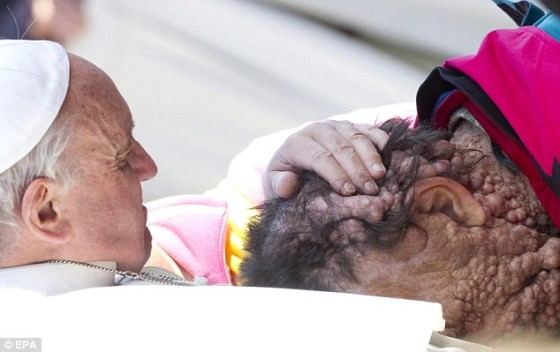 Last week, Pope Francis stepped out into a crowd & embraced a man with neurofibromatosis, which is pretty hard for most people to look at....